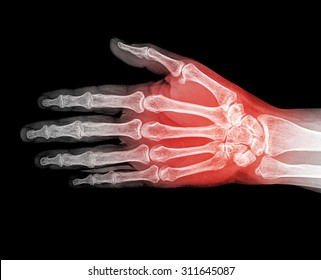 Hand xray image medical background