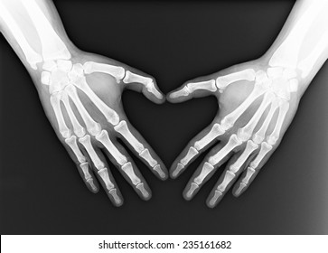 Hand X-ray images for use in treatment.Patients with symptoms related to the hand.