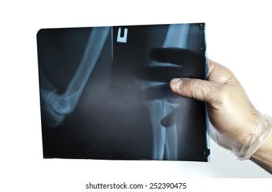 hand x-ray radiography examination