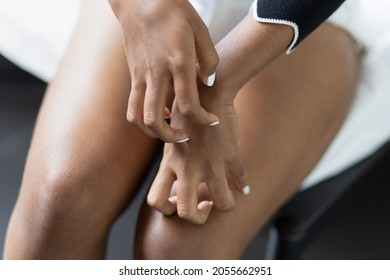 Hand of young black African woman scratching her hand skin, concept of easy allergic skin, dry itching skin, unhygienic skin care, ringworm, rash, redness