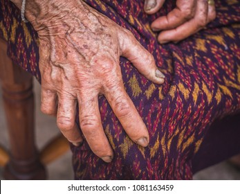 Hands of Asian Elderly Woman with Visible Veins, Dark Freckles Aging Spots, Wrinkles and Dirty Nails. Bare Hand Skin of Poor Old Senior Labor or Farmer in Agricultural Rural Area of Southeast Asia