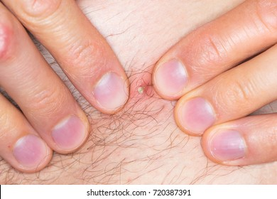 Infected Ingrown Hair Pubic Region Caucasian Stock Photo Edit Now