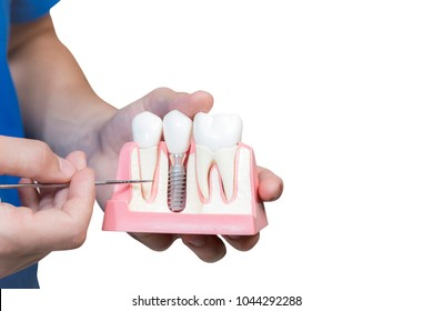 hands of the dentist hold a breadboard model of the tooth with an implant