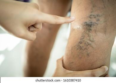 Hands of female doctor is showing varicose vein in the leg of asian senior man,vascular disease,spider veins,varicose veins,superficial veins problems,elderly people sore,swollen skin,muscle pain