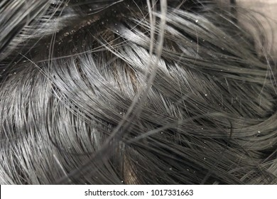 Hands holding hair black with dandruff problem