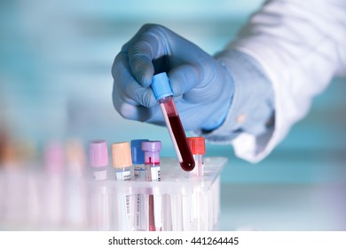 hands of a lab technician with a tube of blood sample and a rack with other samples / lab technician holding blood tube sample for study