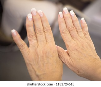 Hands of a middle aged woman with problems of rheumatism, osteoarthritis and skin blemishes