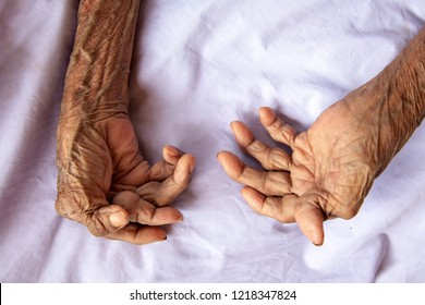 The hands of an old woman with rheumatoid arthritis. Diseases caused by degeneration of the joints of the fingers.