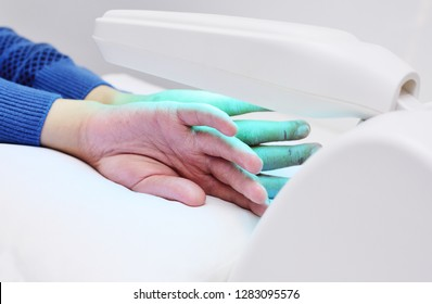 hands of a patient with psoriasis close-up under an ultraviolet lamp. Light therapy, phototherapy