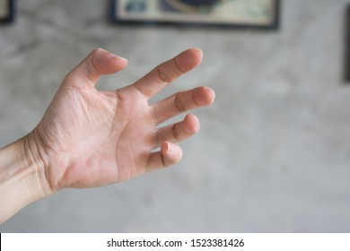 The hands of patients with spasticity