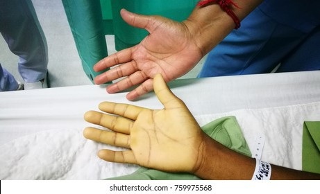 Hands showing severe  Anemia due to blood loss comparing to  pink color skin in normal healthy individu