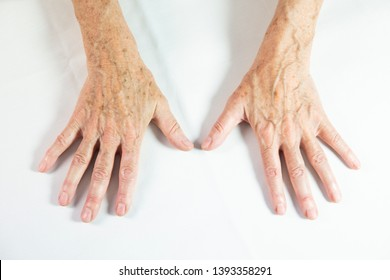 Hands with spots of old age