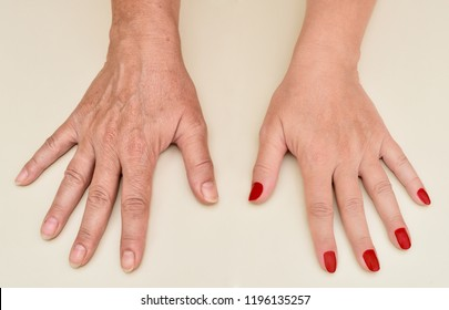 Hands of a woman before and after manicure and skin treatment