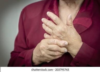 Hands Of Woman Deformed From Rheumatoid Arthritis. Pain