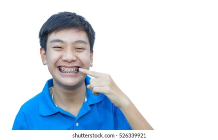 Handsome boy smiling pointing his teeth brace dental on isolate background.