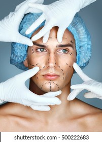 Handsome man with many surgical hands. Man with pencil marks on skin for cosmetic medical procedures. Surgical mark lines on eyes, nose, cheek, and jaw. Beauty Face