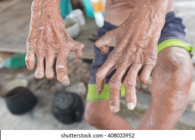 Hansen's disease,closeup hands of old man suffering from leprosy, amputated hands