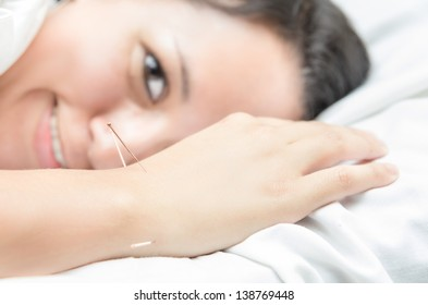 Happy Acupuncture patient with needles along arm