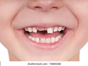 Happy little girl or boy toothless smile close-up