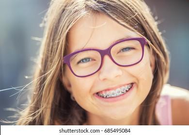 快樂的微笑女孩牙箍和眼鏡。