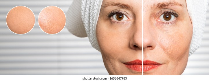 happy woman after beauty treatment - before/after shots - skin care, anti-aging procedures, rejuvenation, lifting, tightening of facial skin