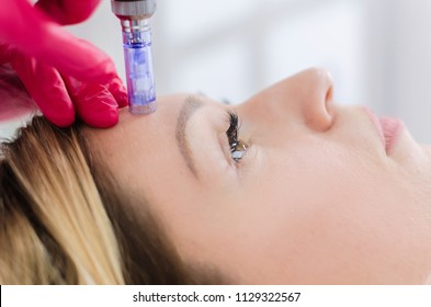 Hardware cosmetology, mesotherapy, close up of young woman getting treatment of forehead zone at spa.