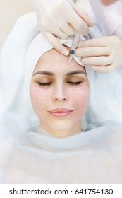 Hardware and Injections cosmetology. Top view of Closeup portrait of female face with closed eyes getting Biorevitalization of the face procedure in a beauty parlour clinic or spa salon.