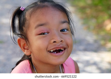 HAT YAI,SONGKHLA/THAILAND - JULY 1: Thai girl are hordeolum style and broken tooth on july1,2017 in hat yai,songkhla/Thailand.