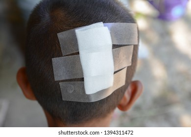 The head of a 6 year old boy with a bandage cause of the broken head causing severe wounds.