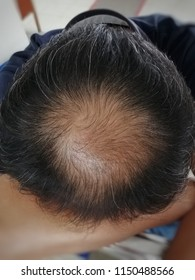 The head of a man with scalp health problems causes hair loss.