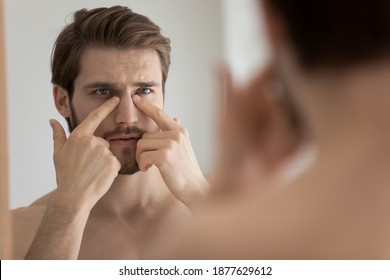 Head shot close up unhappy young man touching under eyes area or facial skin, feeling dissatisfied with condition, looking in mirror after morning showering, needs improving skincare daily routine.