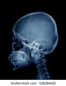 head skull x-ray side view in blue tone