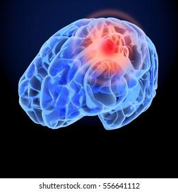 Headache X-Ray 3D model. Brain neurons synapse, anatomy body. Medical illustration of disease, head pain