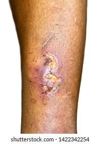 Obrazy, zdjęcia stockowe i ilustracje wektorowe: Cellulitis