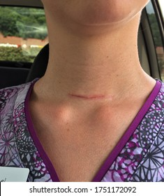 A healing scar on a woman's neck from thyroidectomy surgery due to papillary thyroid cancer