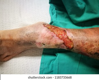 Healing Venous Ulcer of the leg with granulation tissue.