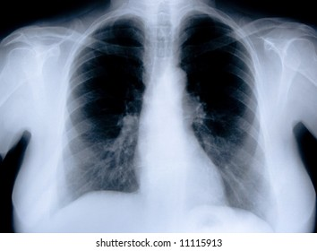 health medical image of an x ray of the chest