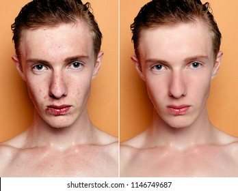 health, people, youth and beauty concept - Before and after cosmetic operation. Young man portrait. Before and after cosmetic or plastic procedure, anti-age therapy, removal of acne, retouching