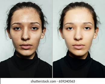 health, people, youth and beauty concept - Before and after cosmetic operation. Young pretty woman portrait. Before and after cosmetic or plastic procedure anti-age therapy, treatment