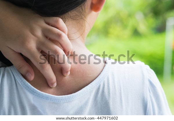 Health problem. Closeup asian girl  scratching her itchy back