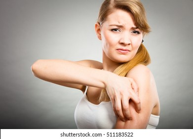 Health problem, skin diseases. Young woman scratching her itchy arm with allergy rash