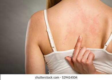 Health problem, skin diseases. Young woman showing her itchy back with allergy rash urticaria symptoms