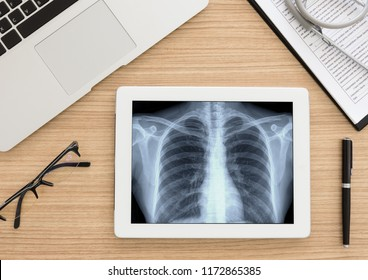 healthcare and medical concept. lung x-ray image of scan chest patient on digital tablet screen.  top view.