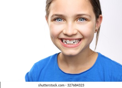 Healthy, beautiful smile, the child to the dentist.Portrait of a little girl with orthodontic appliance .