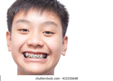 Healthy boy smiling show his teeth brace on isolated background.