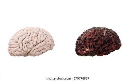 healthy brain and disease brain on white isolate. Autopsy medical concept. Cancer and smoking problem. 3d rendering