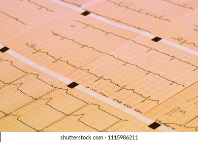 Healthy concept: stethoscope and electrocardiogram (ECG, EKG) in paper form
