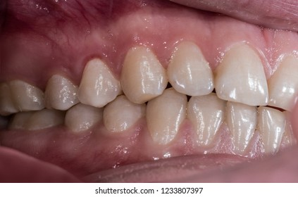 Healthy human teeth with normal occlusion from side view .