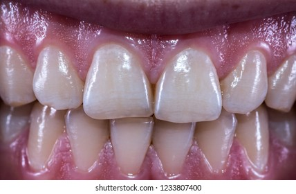 Healthy human teeth with normal occlusion from frontal view .
