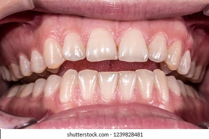 Healthy human teeth with normal occlusion from frontal view